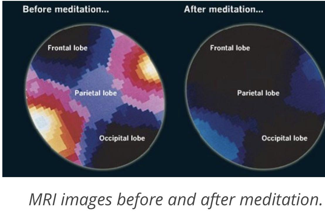 MRI brain changes after meditation